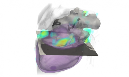 Illustration of a lung cancer scan.